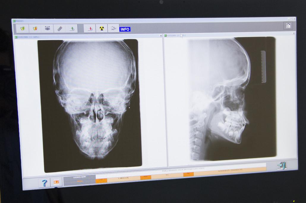 Radiologia Digitale Odontoiatrica